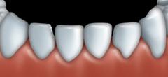 Mordan�age et facettes : Dentiste � Repentigny 1