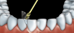 Mordan�age et facettes : Dentiste � Repentigny 2