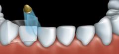 Mordan�age et facettes : Dentiste � Repentigny 3