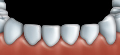 Mordan�age et facettes : Dentiste � Repentigny 4