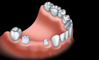 Les ponts et implants par votre dentiste 01