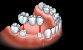 Les ponts et implants par votre dentiste 02