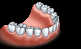 Les ponts et implants par votre dentiste 03