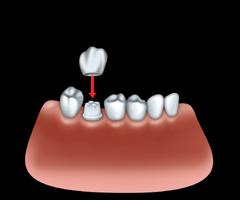 Couronne par un dentiste � Repentigny 01