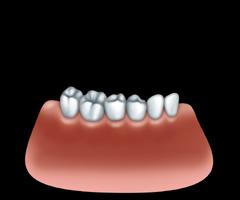Couronne par un dentiste � Repentigny 03