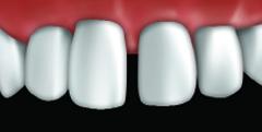 facettes par votre centre dentaire � Repentigny 1