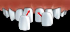 facettes par votre centre dentaire � Repentigny 2