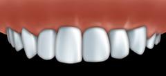 facettes par votre centre dentaire � Repentigny 3