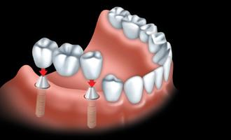 Les ponts et implants par votre dentiste 05