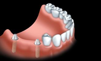 Les ponts et implants par votre dentiste 04