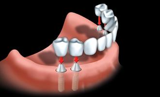 Les ponts et implants par votre dentiste 06