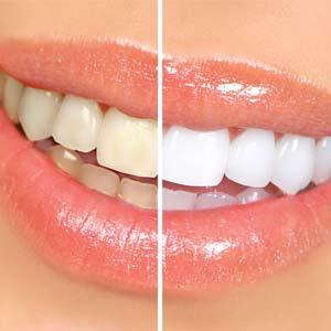 blanchiment des dents Repentigny