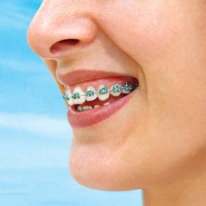orthodontie Repentigny