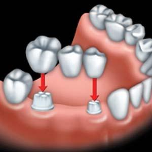 ponts et implants dentaire