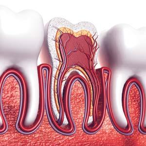traitement de canal par un dentiste